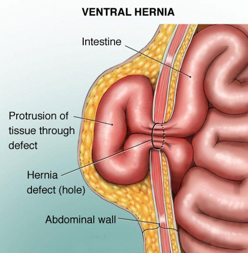 Hernia: Why you should not ignore that swelling | The New Times | Rwanda