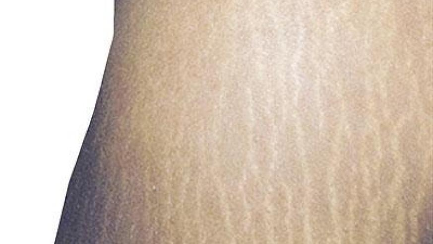 Stretchmarks create a lot of discomfort among women.  The New Times / File