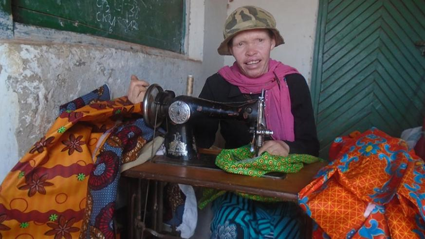 Bernadette Niyodusenga, the albino seamstress in Ngoma Sector, Huye District who transformed her life through sewing clothes. (Photos by Rermy Niyingize)