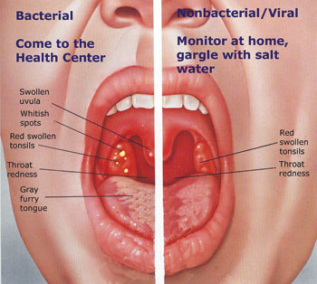Health: Sore throat-an irritating condition | The New Times