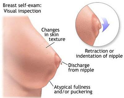 Monthly breast self-exams should always include visual inspection to identify unusual changes. Net Photo.