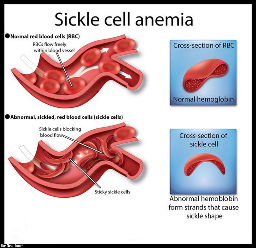 A graphic illustration of how sickle cells affect normal blood circulation. Internet photo.