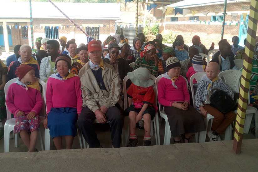 People with albinism in Musanze District gathering in a meeting. / Remy Niyingize
