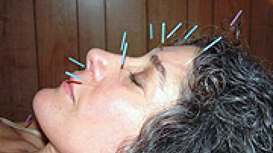 Needles pieced in a woman's face to ease pain (Net photo)