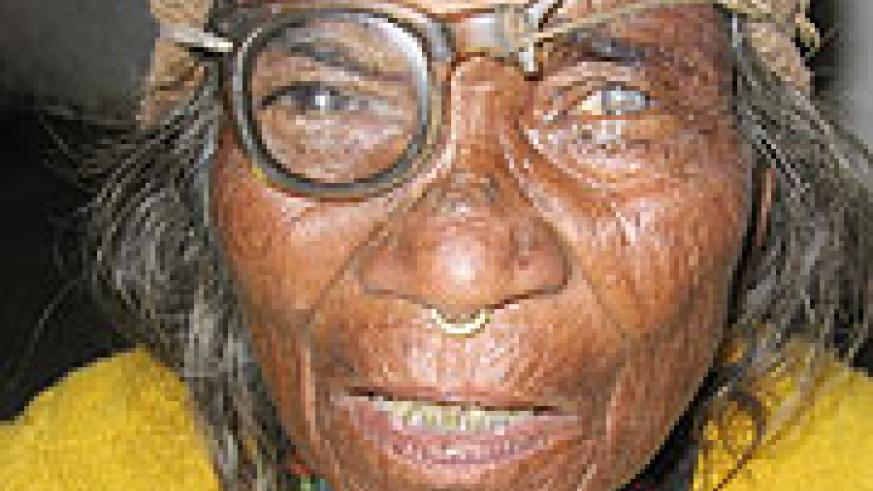 Notice her broken glasses and mature cataract.