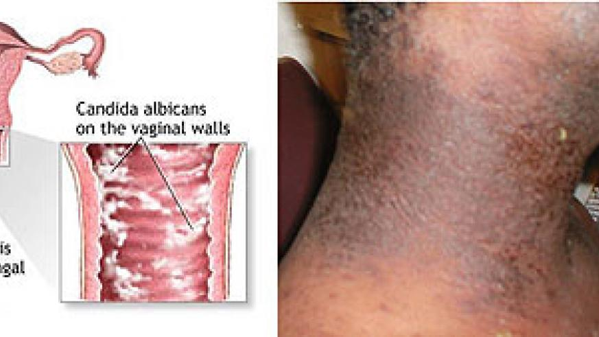 L-R : Yeast-Infections ; An infection on the right side of the neck