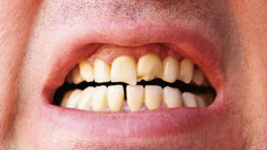 Health Know Why Teeth Grinding Is Abnormal The New Times Rwanda
