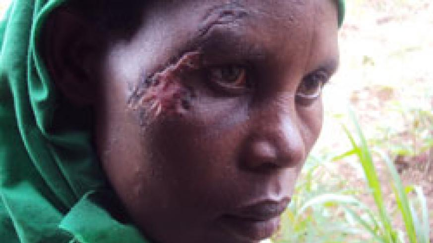 Immaculee Mukashyaka shows the scar she sustained after a scuffle with a local leader (Photo by Bucyensenge).