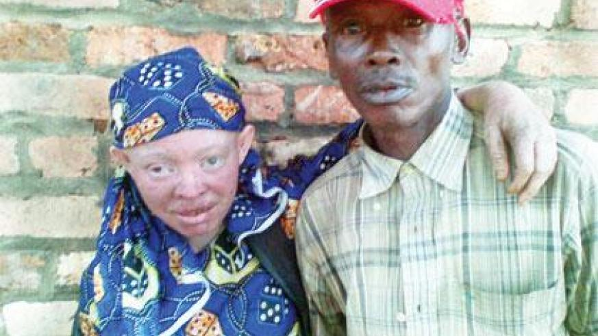 He married an Albino against all odds | The New Times | Rwanda