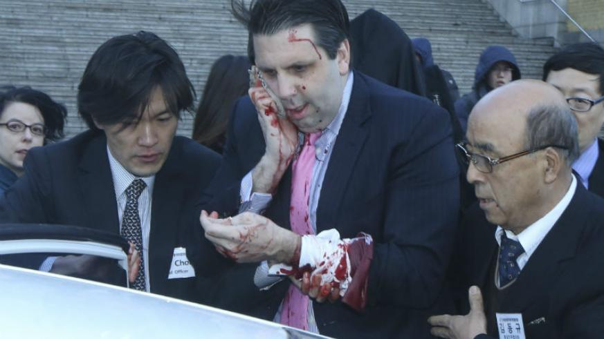 U.S. Ambassador to South Korea Mark Lippert leaves after he was slashed in the face. Agencies