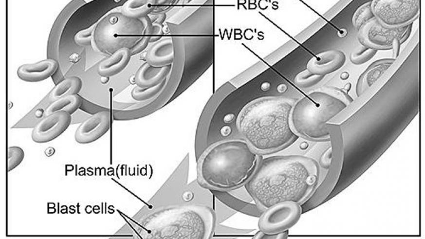A graphic illustration of how leukemia affects the blood cells. (Net photo)