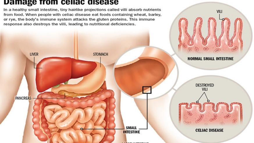 What You Should Know About Celiac Disease The New Times Rwanda