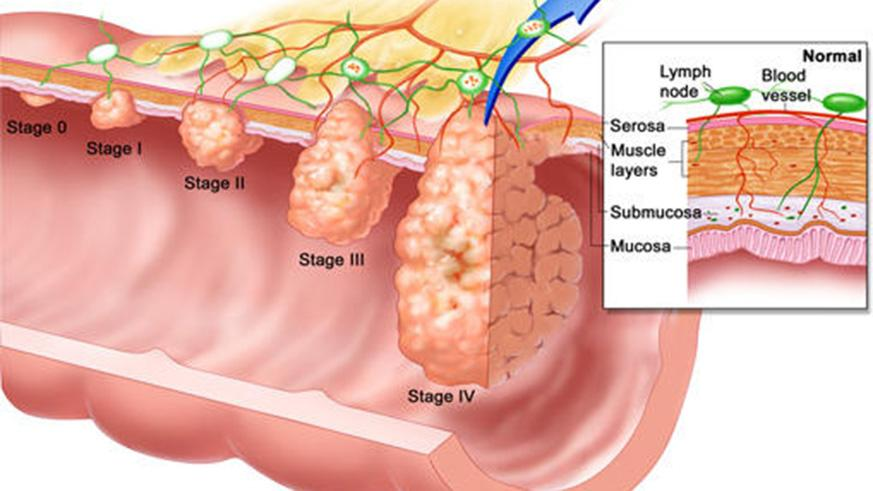 Colon Polyps Early Intervention Can Prevent Colon Cancer The New
