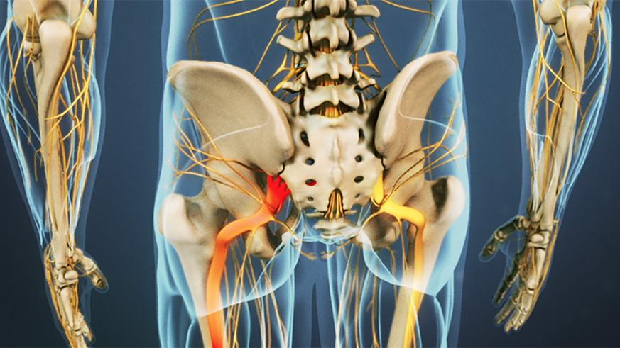 Sciatica is painful but rarely life threatening; however, is there is extreme muscle weakness or trouble controlling bowels or bladder seek medical attention immediately